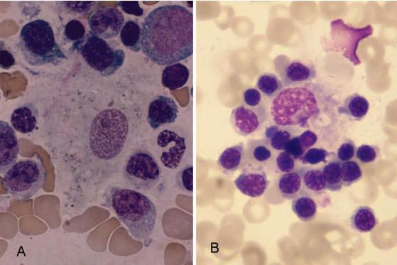 Retikulum hücresi