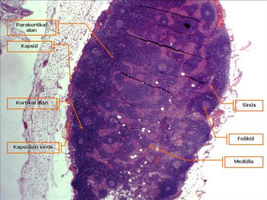 Şekil 2. Normal lenf düğümü (küçük büyütme). Solda en dışardan içeriye doğru, yağ dokusundan sonra sırayla; lenf düğümünün kapsülü, kapsülaltı sinüs, korteks (kortikal alan) ve burada yer alan foliküller, foliküller arası alan ile derin korteksi içeren parakorteks (parakortikal alan), sinüsler ve lenfosit kordonlarının oluşturduğu medülla görülüyor.