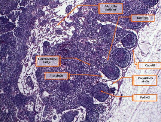 Şekil 4. Lenf düğümünde açık sinüsler: kapsülaltı sinüs, ara (intermediate) sinüs ve medülla sinüsleri. Korteksde alt alta sıralanan foliküllerde germinal merkezler yok (birincil folikül).