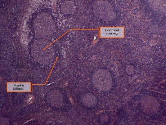 Şekil 7. Reaktif folikül hiperplazisi. Çok sayıda, farklı büyüklük ve biçimde ikincil foliküller.