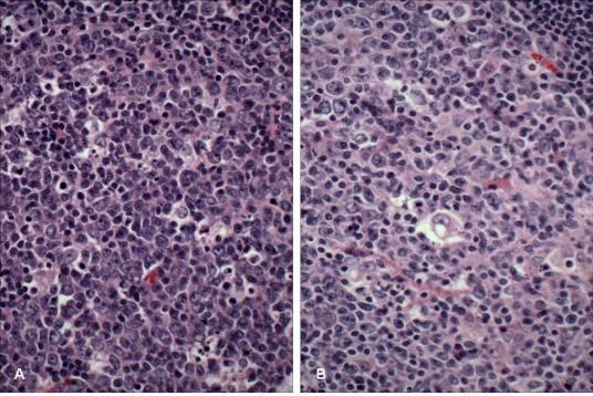 Şekil 9. Germinal merkez hücreleri. A) Koyu alan (küçük büyütme): tingible body makrofajlar ve sentroblastlar belirgin . B) Açık alan (küçük büyütme): sentrositler ve dendritik hücreler belirgin.