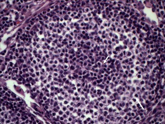 Şekil 12. Marjinal bölge hiperplazisi (daha büyük büyütme). Çoğalmış marjinal bölge lenfositlerinin açık berrak sitoplazma içerdikleri gözüküyor (uzun ok). Ortadaki koyu bölge (kısa ok) atrofik bir folikül.