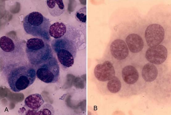 Osteoblast ve Osteoklast