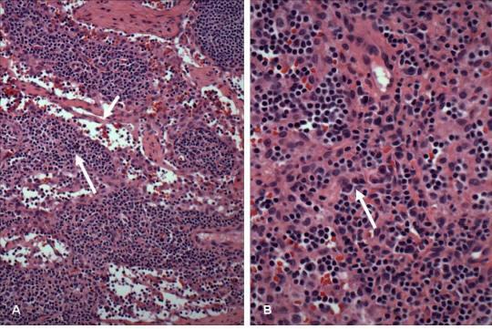 Şekil 14. Medülla. A) Medüllada medülla sinüsleri (kısa ok) ve medülla kordonları (uzun ok) vardır. B) Medülla kordonlarında küçük B lenfositler, T lenfositler ve olgun plazma hücreleri (ok) bulunur.