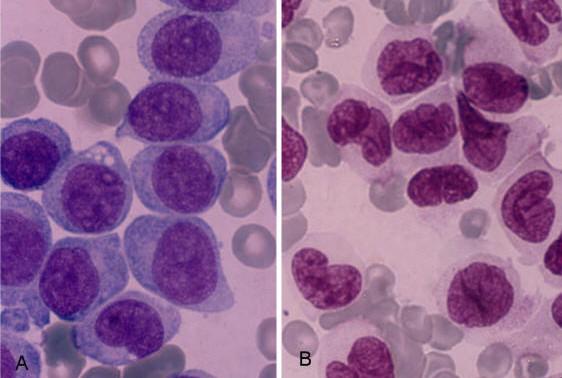 AML L5, Monoblastik lösemi