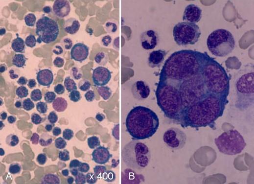 AML M6, Eritrolösemi