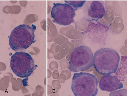 AML M7, Megakaryoblastik lösemi