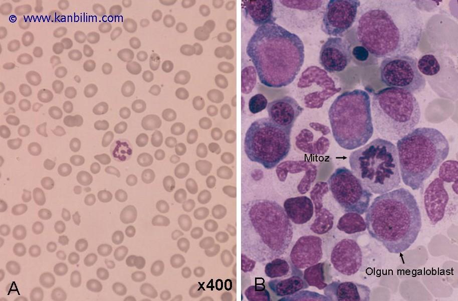 Megaloblastik eritropoez