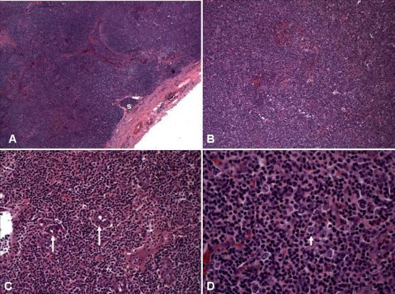 Disproteinemili anjiyoimmünoblastik lenfadenopati (DAİL