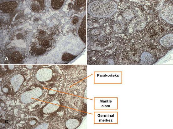 Dermatopatik lenfadenopati (immünohistokimya).