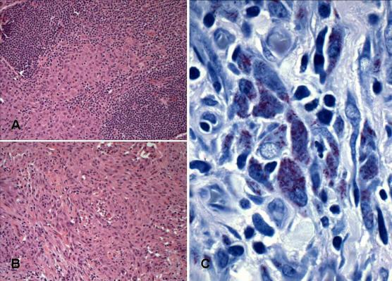 Mycobacterium avium intracellulare (MAI) lenfadeniti