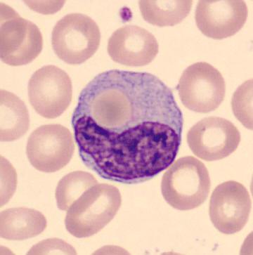 hemofagositoz