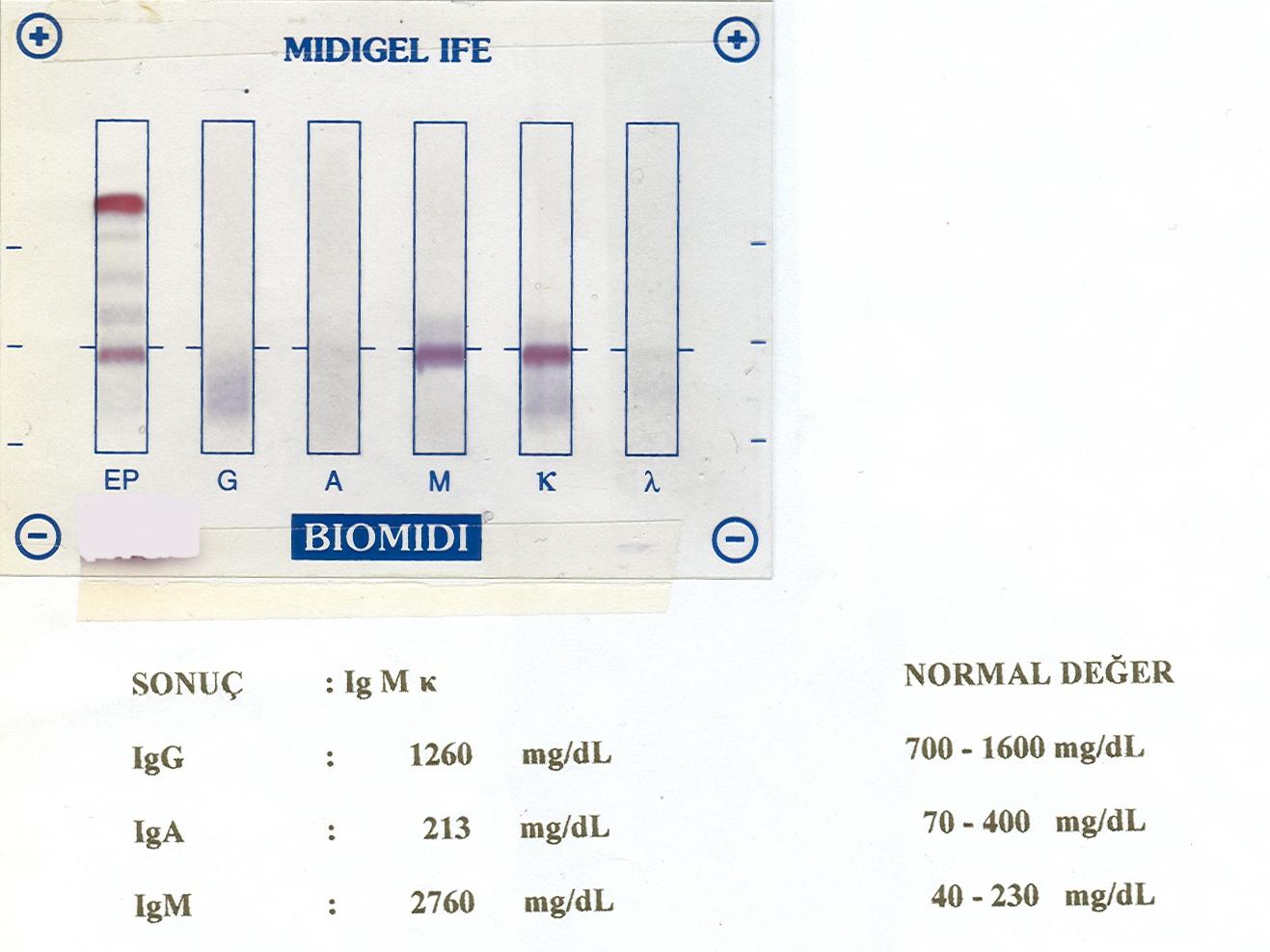 immun elektroforez