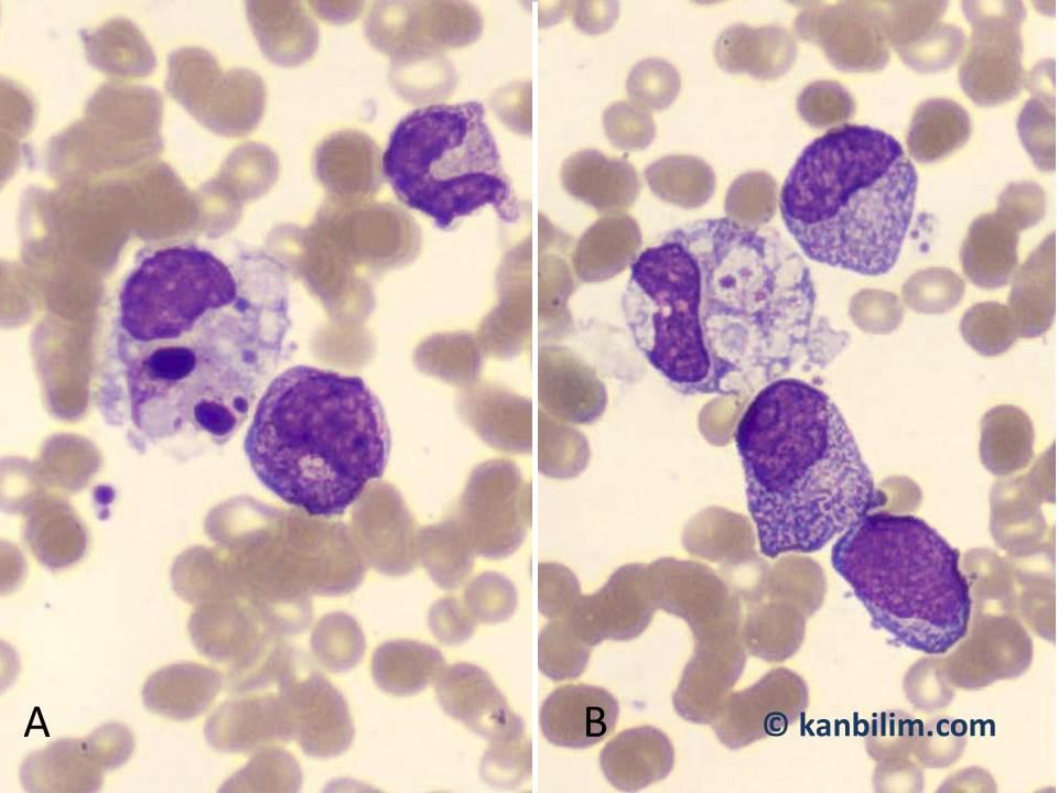 Hemafagositoz