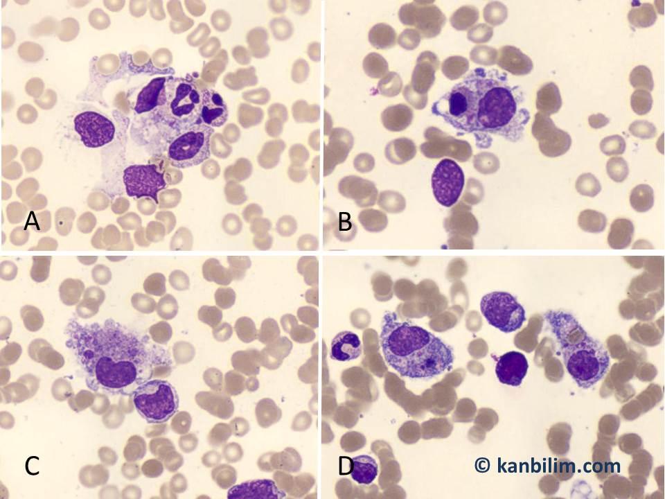 Hemafagositik sendrom
